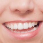 差し歯が臭くなる7つの原因と臭くならないようにするには