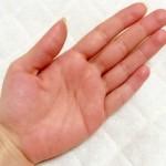汗をかくと痒くなるのはなぜ?3つの原因と対策